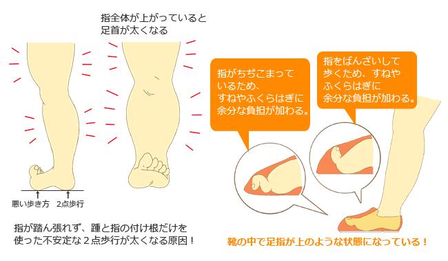 太い脚を作る原因 浮き指歩き